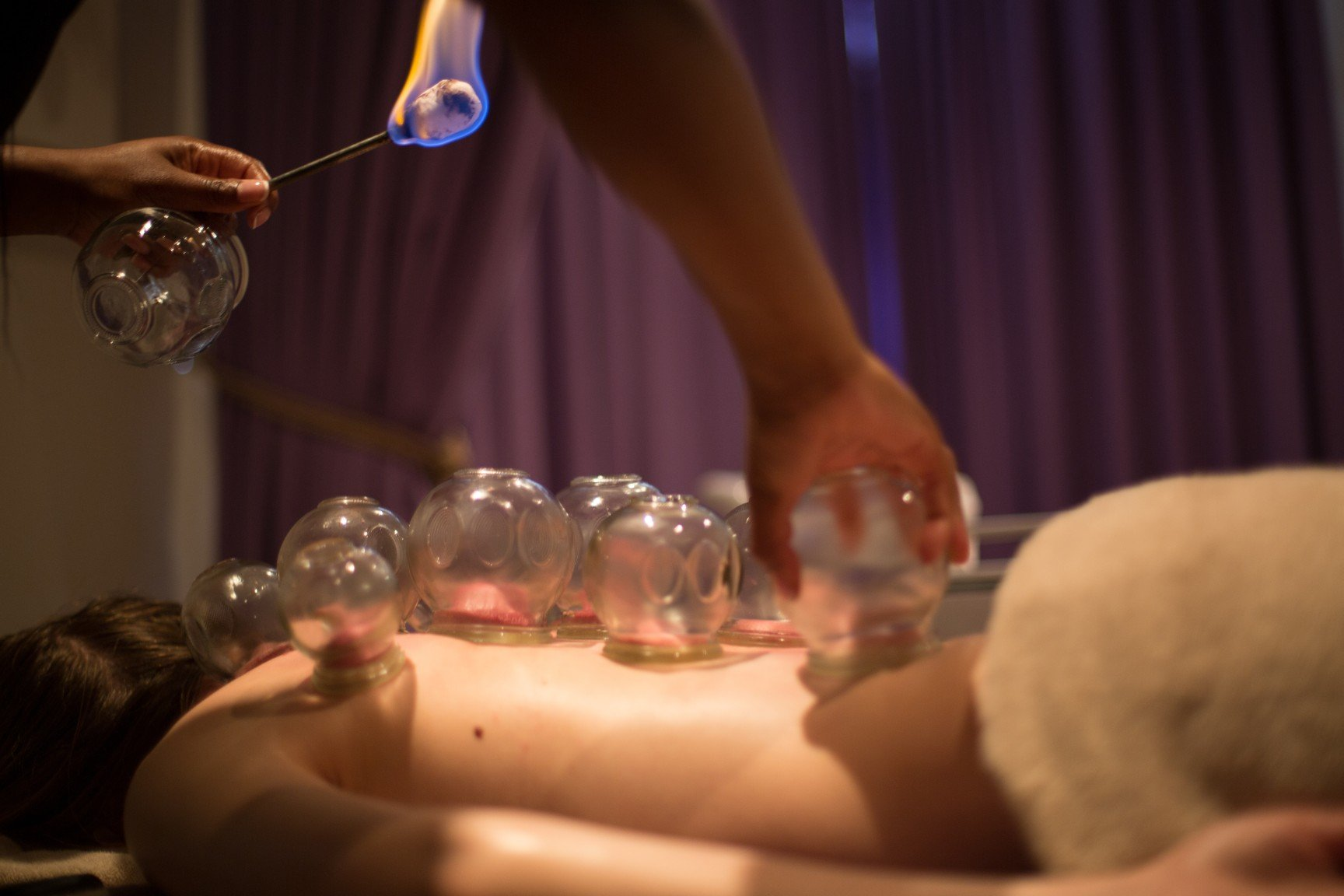 massage spa cape town cupping